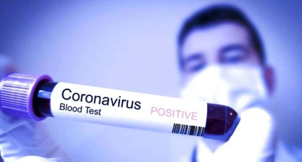 Benarkah Virus Corona Mudah Menular